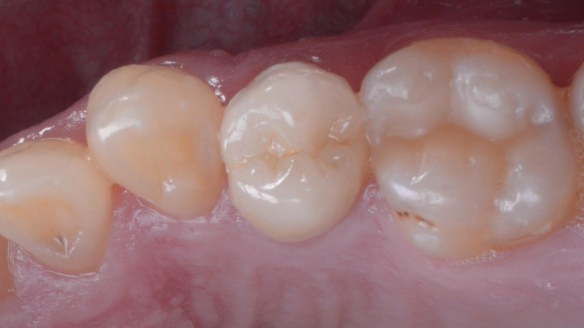 Incrustații integral-ceramice pe dinți fără tratamente de canal și plombe