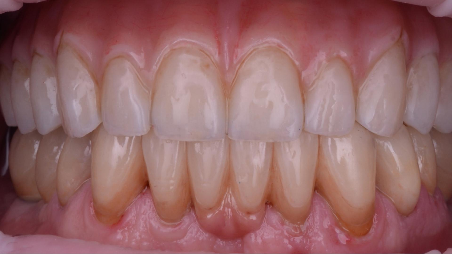 Inserare implanturi și restaurare protetică mixtă – proteză telescopată pe implanturi și coroane integral ceramice pe dinții pacientului