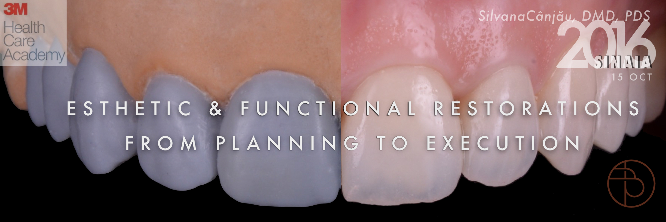 ESTHETIC & FUNCTIONAL RESTORATIONS FROM PLANNING TO EXECUTION